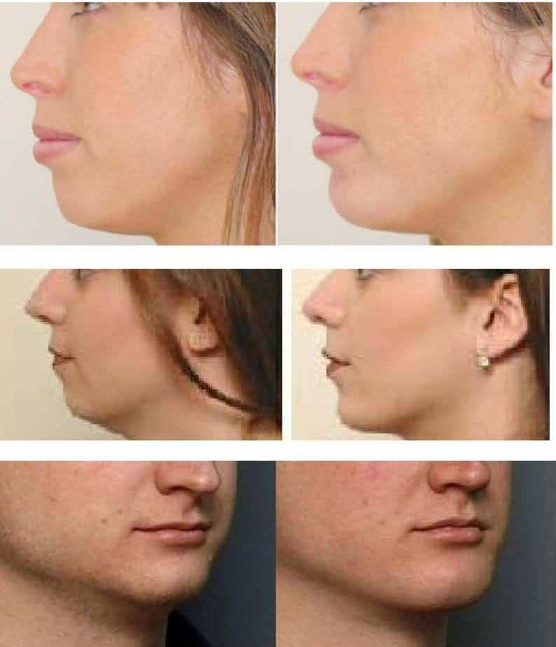 photo improve the profil of the chin with hayluronic acid and botox cosmetic medecine paris