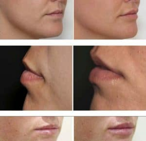 result before after the profil of the lips with hayluronic acid and botox cosmetic medecine paris