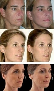 photo improve the profil of cheekbones with hayluronic acid and botox cosmetic medecine paris
