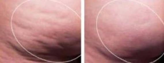 photo resultat sur cellulite avec cellfina