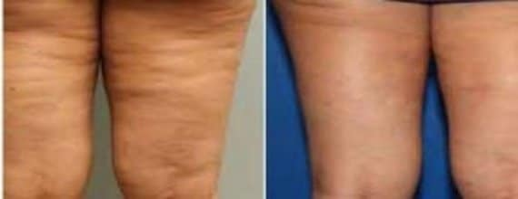 Photo traitement cellulite avec cellfina