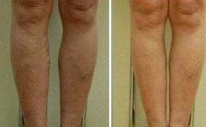 picture fluid retention treatment