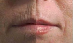 photo treatment of the lip contour in cosmetic medicine