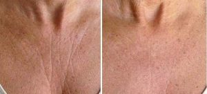 result before after cosmetic treatment of neck and decolletage wrinkles by laser