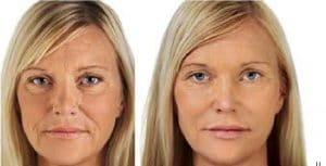 photo skin hydratation with hyaluronic acid
