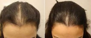 photo before after hair stronger cosmetic medical treatment