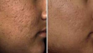 photo the best treatment for acne scars in paris