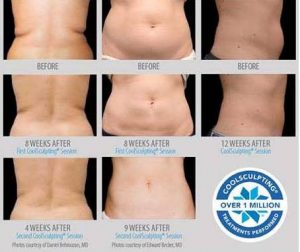 photo treatment cryolipolysis coolsculpting in paris