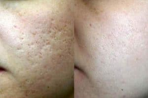 photo resultat avant apres taitement laser pour les cicatrices d acne