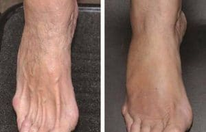photo rejuvenation pieds