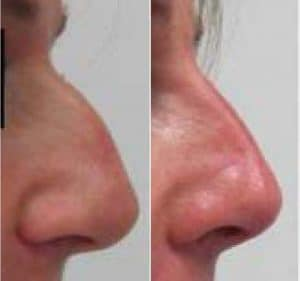 result before after beautiful nose with cosmetic medecine