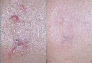 photo laser treatment for hypertrophic and keloid scar in paris
