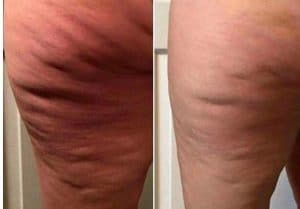 photo traitement de la cellulite par velashape