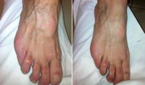 photo comblement des pieds par injection d acide hyaluronique