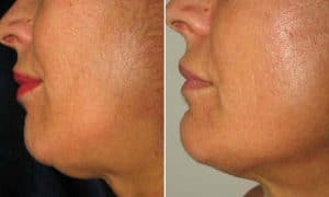 result before after improve profile of chin