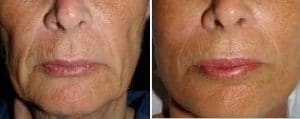 before after TCA peel PRX T33