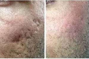 photo remove acne scars quickly in paris with laser