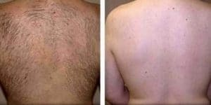 photo laser hair removal back of men
