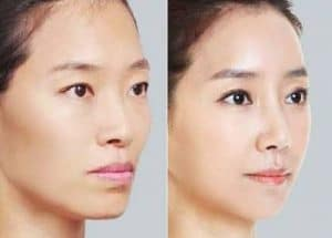 picture westernisation of Asian features