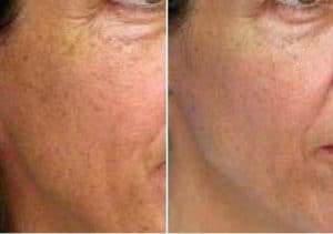 photo rajeunissement laser du visage