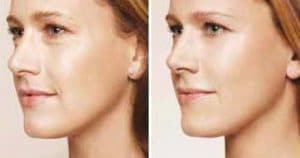 Photo hyaluronic acid for elasticity of the skin