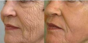 result deep peel on the face