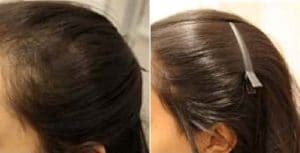 photo traitement de la chute des cheveux par mesotherapie
