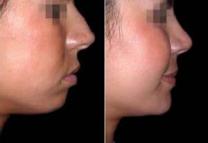 Aesthetic treatment to improve the profile before and after photos