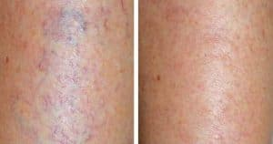 photo treatment varicosities in the leg and vascular sclerosis by laser