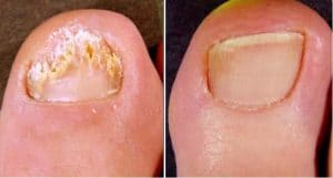 result laser for fungual nail desease