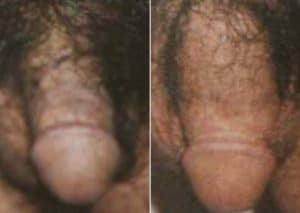 photo augmentation du penis