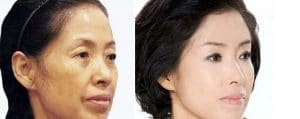 before after westernisation of Asian features