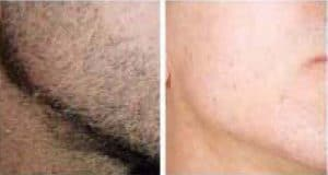 photo laser hair removal face of men