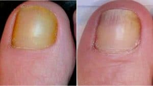 before after laser for fungual nail desease