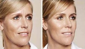 Before after hyaluronic acid in the face