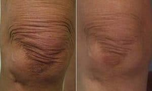 photo sagging skin treatment on the knees