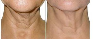 result before after cosmetic treatment of neck and decolletage wrinkles by hyaluronic acid injection