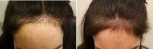 photo cosmetic treatment of hair loss
