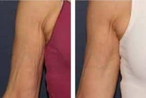 photo cosmetic treatement of wrinkles on the arms