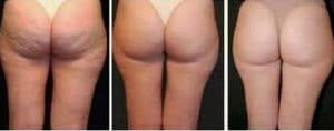 before after treatment cellulite on the botttom by cellfina