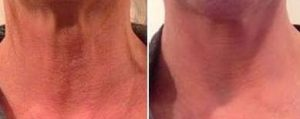 result before after cosmetic treatment of neck and decolletage wrinkles