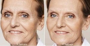 Photo hyaluronic acid to improve the fine lines of the skin