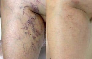 photo cosmetic treatment of the vessels on the legs