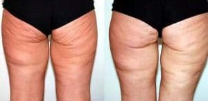 before after cellulite treatment