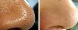 Photo how to eliminate dilated pores