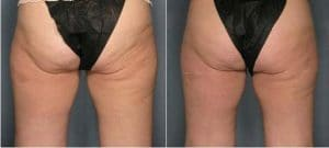 photo sagging skin treatment on the thighs and buttocks