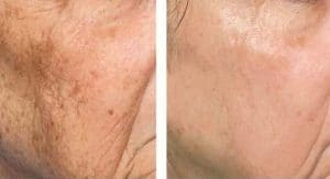 photo wrinkles treatment with fractional erbium laser or fraxel in paris