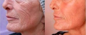 result deep peel to treat wrinkles