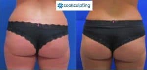 resultat coolsculpting