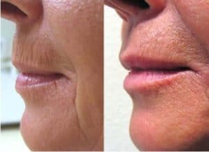 photo treatment of lips wrinkles by peel